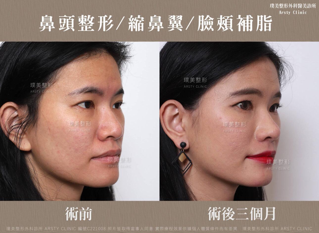 鼻頭整形 縮鼻翼 臉頰補脂 C221008BA3M04