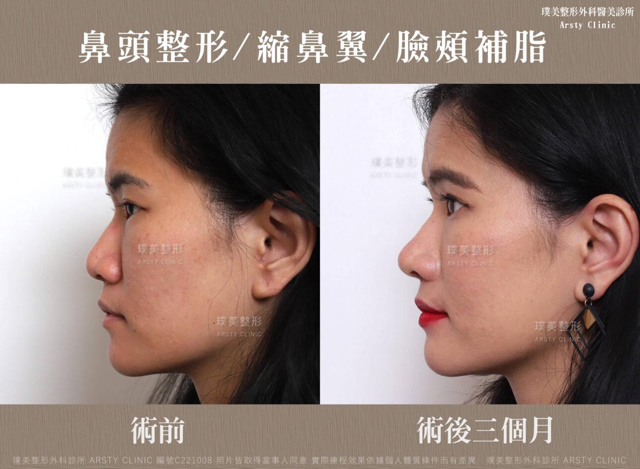 鼻頭整形 縮鼻翼 臉頰補脂 C221008BA3M07