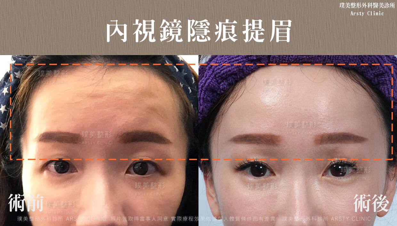 03內視鏡提眉 拉皮頁面BA 改善皺眉紋、抬頭紋