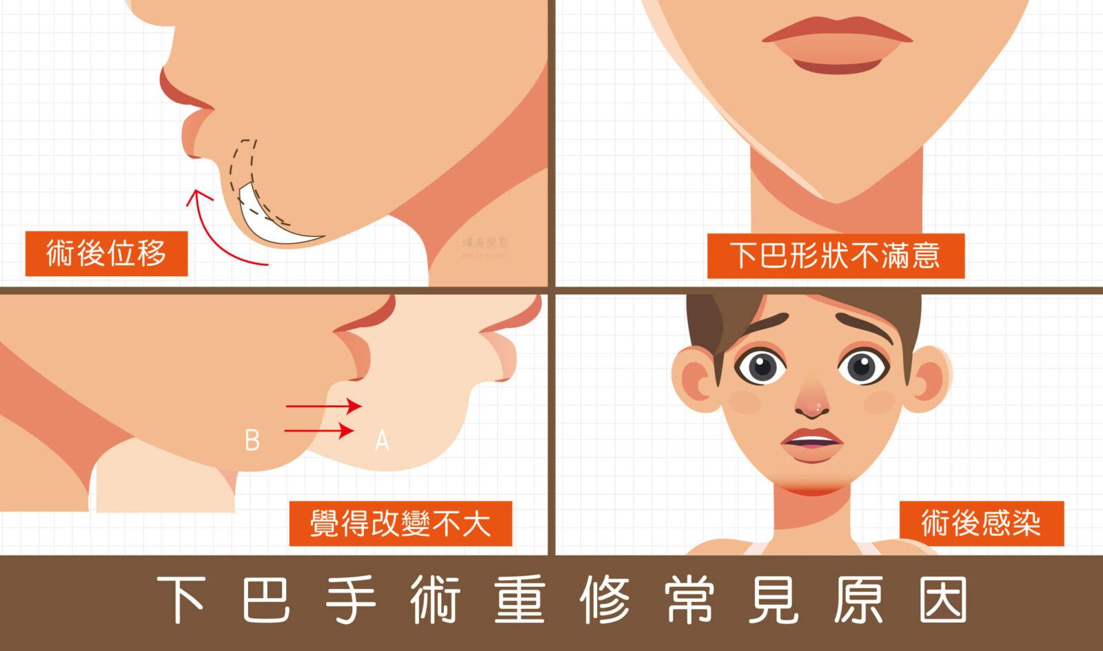 04 下巴手術重修常見原因