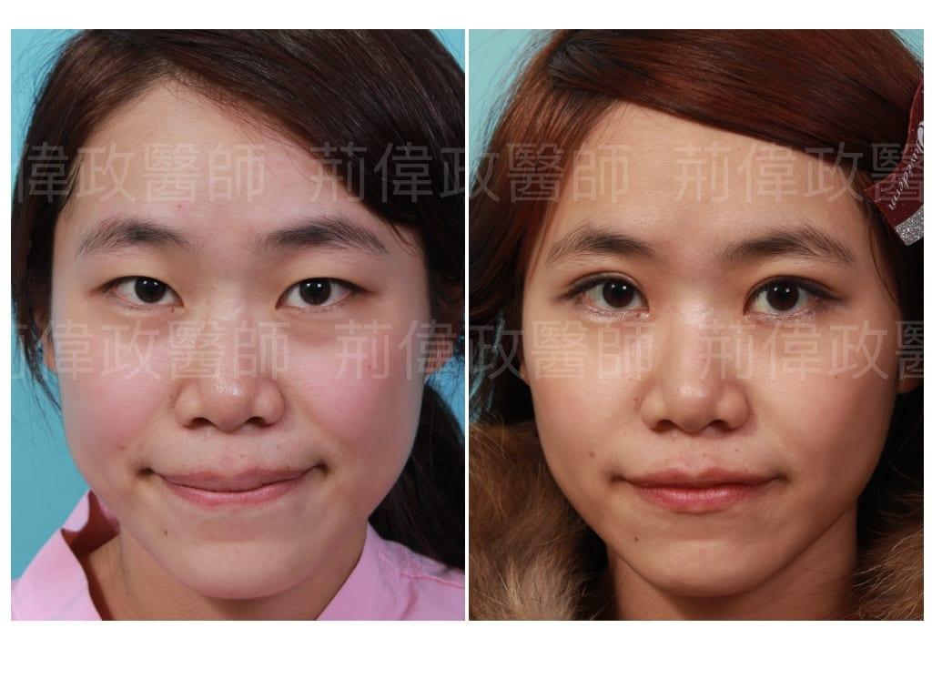 荊偉政醫師、眼整形權威、提眼瞼肌、眼瞼肌無力、眼整形推薦、訂書針雙眼皮、雙眼皮自然形成、雙眼皮單眼皮、縫雙眼皮