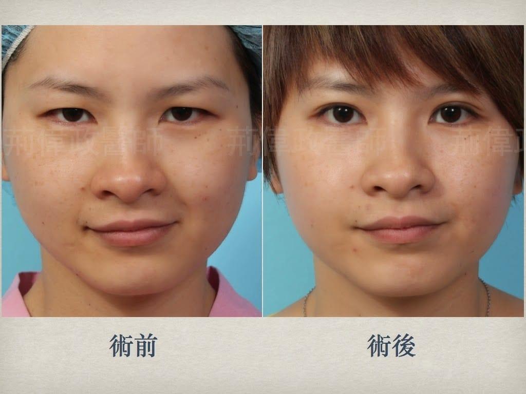 02雙眼皮、割雙眼皮手術醫師推薦、雙眼皮手術失敗、眼瞼肌無力、大小眼