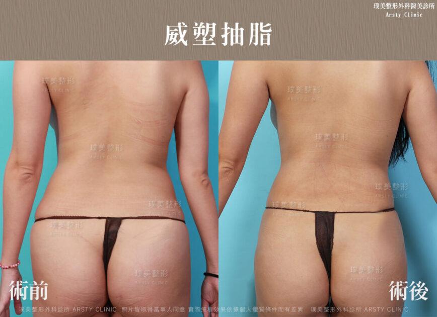 璞美整形外科威塑抽脂臀部抽脂術前後比對