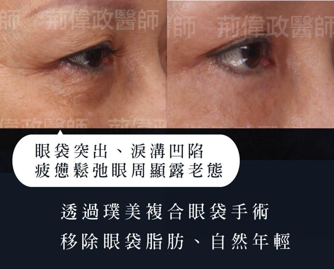 老化眼袋手術