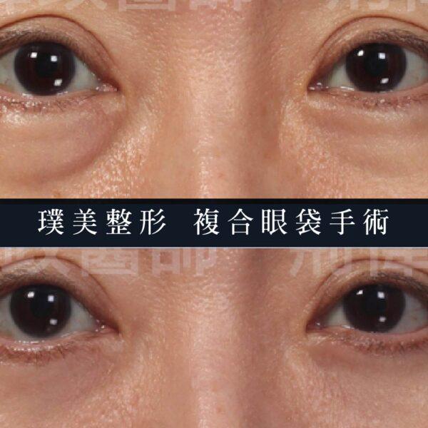 眼袋手術、荊偉政醫師、余德毅醫師、眼整形外科、眼袋手術費用、眼袋手術推薦、眼袋PTT、ptt推薦、眼袋手術、眼袋價錢、眼袋失敗、眼袋風險、眼袋疤痕、台北、推薦