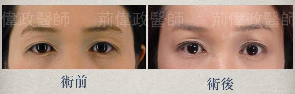 微創拉提、提眉手術價格、內視鏡提眉手術、提眉手術推薦、提眉肌