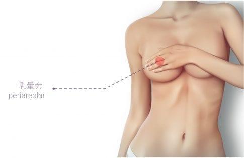 豐胸 胸部變大 隆乳 美胸 事業線