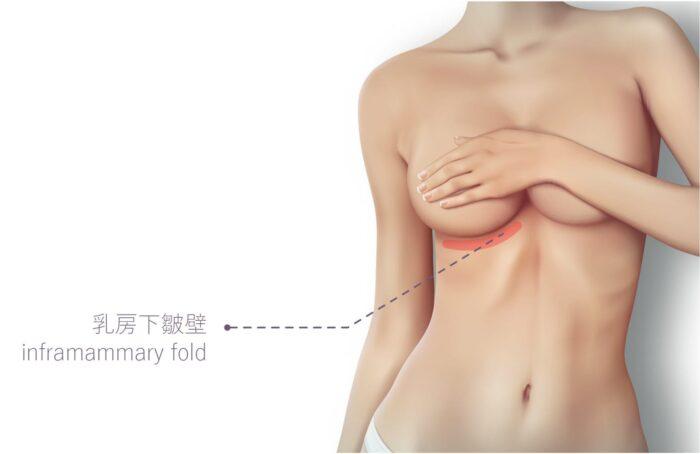 事業線 豐胸 胸部怎麼變大 隆乳 美胸