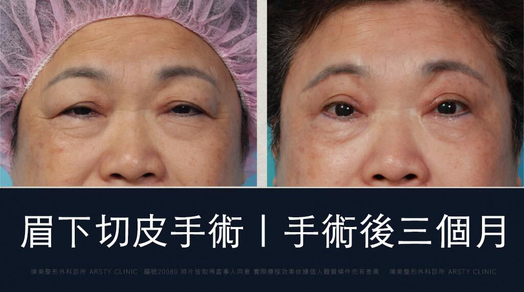 眉下切皮 案例 術後三個月