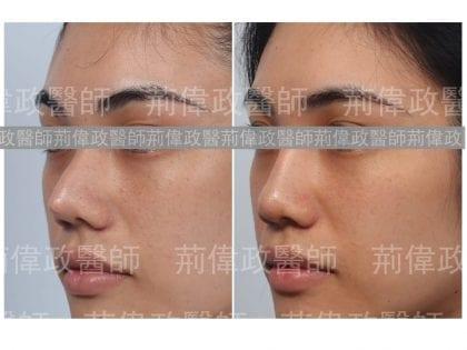 荊偉政醫師、極緻醫美、隆鼻手術恢復時間、隆鼻前後對比、注射隆鼻後遺症、隆鼻失敗、矽膠隆鼻能保持多久、鼻整形ptt、山根