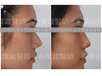 荊醫師、極緻醫美、玻尿酸、漂亮、鼻子、台北台中台南、鼻整形ptt、山根、整形外科醫師推薦
