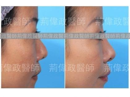 荊醫師、極緻醫美、隆鼻手術恢復時間、隆鼻價格、軟骨隆鼻後遺症、隆鼻推薦、隆鼻紀錄、蒜頭鼻整形、朝天鼻整形