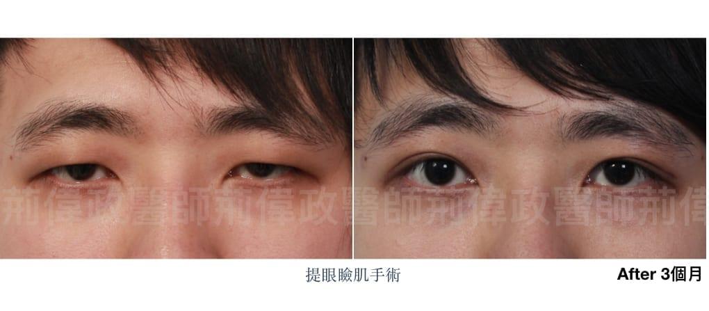 行銷用提眼瞼肌案例分享.002.jpeg 的副本 1