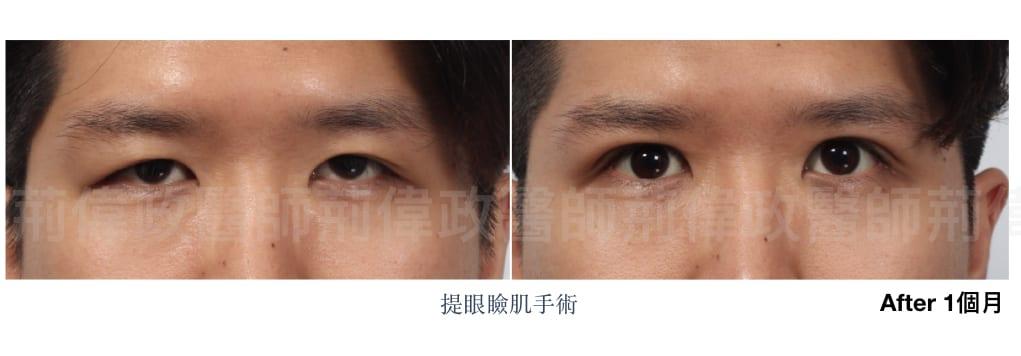 行銷用提眼瞼肌案例分享.003.jpeg 的副本 1