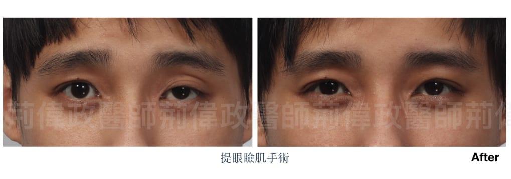 行銷用提眼瞼肌案例分享.007.jpeg 的副本