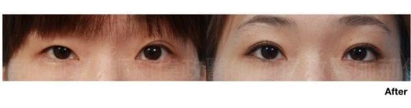 行銷用雙眼皮重修案例分享.003.jpeg 的副本