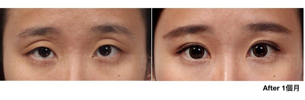 行銷用雙眼皮重修案例分享.004.jpeg 的副本
