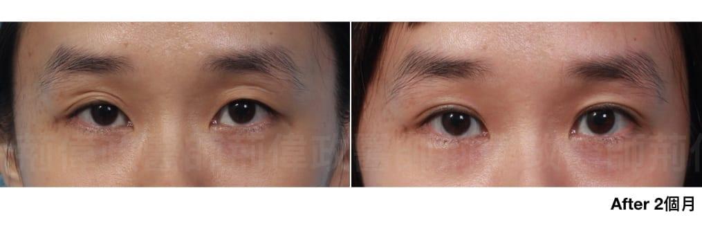 行銷用雙眼皮重修案例分享.005.jpeg 的副本
