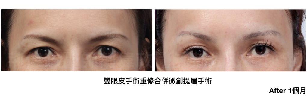 行銷用雙眼皮重修案例分享.006.jpeg 的副本