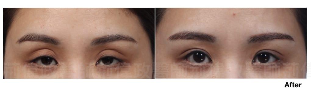行銷用雙眼皮重修案例分享.007.jpeg 的副本
