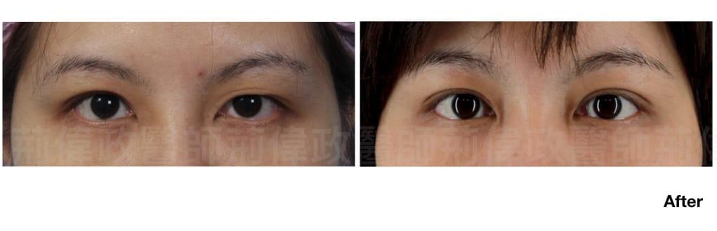 行銷用雙眼皮重修案例分享.008.jpeg 的副本