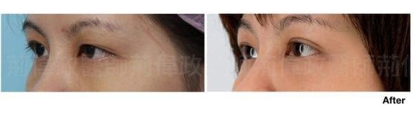行銷用雙眼皮重修案例分享.009.jpeg 的副本