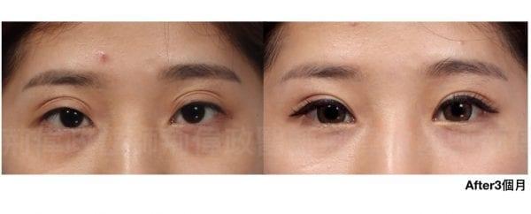 行銷用雙眼皮重修案例分享.010.jpeg 的副本