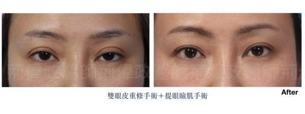 行銷用雙眼皮重修案例分享.011.jpeg 的副本