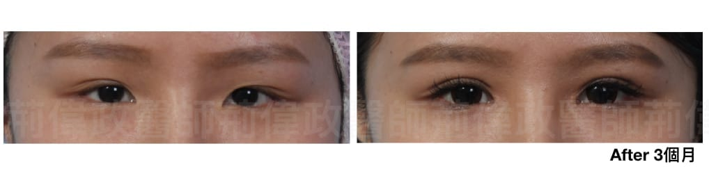 行銷用雙眼皮重修案例分享.012.jpeg 的副本