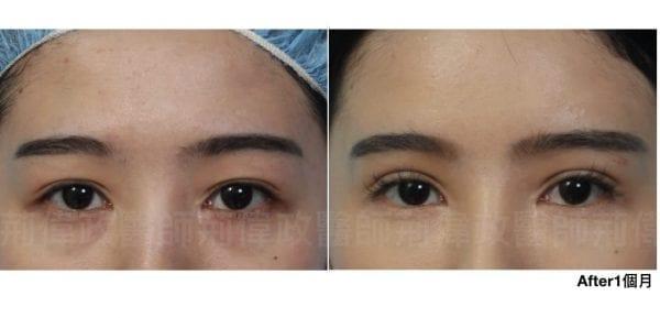 行銷用雙眼皮重修案例分享.013.jpeg 的副本