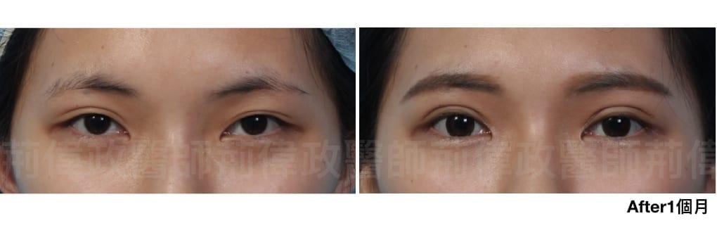 行銷用雙眼皮重修案例分享.014.jpeg 的副本