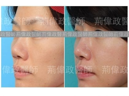隆鼻、極緻醫美、隆鼻手術恢復時間、耳軟骨墊鼻間恢復期、微整隆鼻、玻尿酸、漂亮、鼻子、下巴