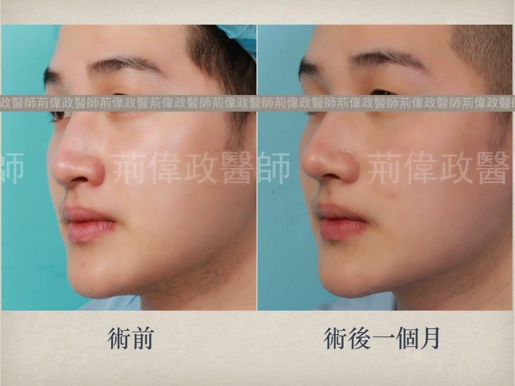 隆鼻、隆鼻前後對比、注射隆鼻後遺症、隆鼻手術過程、隆鼻失敗