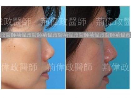 隆鼻、隆鼻手術過程、隆鼻失敗、矽膠隆鼻能保持多久、極緻醫美、隆鼻手術恢復時間、隆鼻價格、隆鼻恢復過程、隆鼻多久後恢復自然