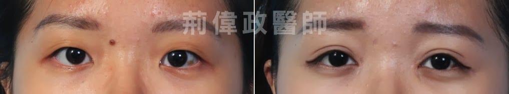 雙眼皮、雙眼皮手術費用、雙眼皮手術推薦、雙眼皮自然形成、雙眼皮單眼皮