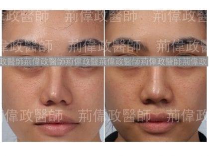 鼻整形、隆鼻手術過程、隆鼻失敗、矽膠隆鼻能保持多久、隆鼻推薦、隆鼻紀錄、蒜頭鼻整形、朝天鼻整形、台北台中台南權威醫師推薦
