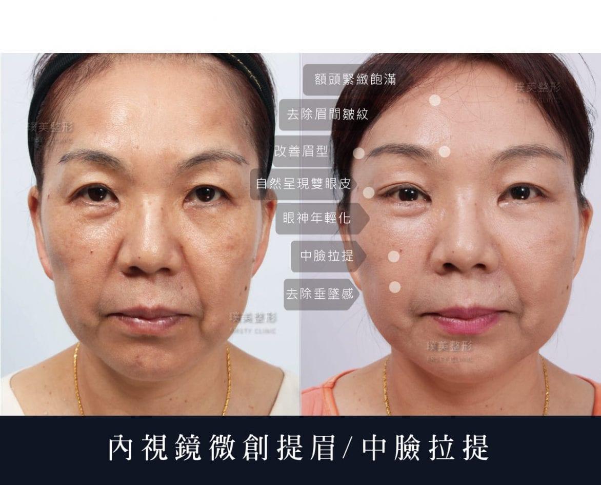 微創提眉醫師推薦可合併上臉拉提及中臉拉提