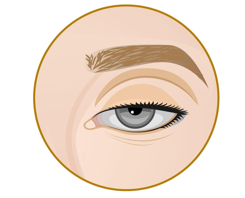 眼袋內開、眼袋推薦、眼袋PTT、淚溝 玻尿酸