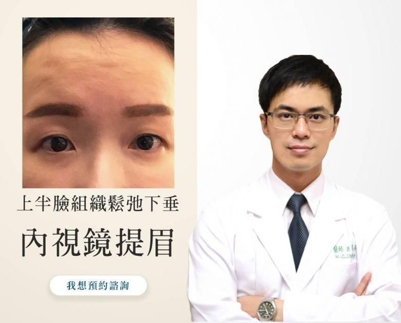 埋線失敗、五爪拉皮失敗、提眼肌PTT、眼睛無神、提眼肌術後