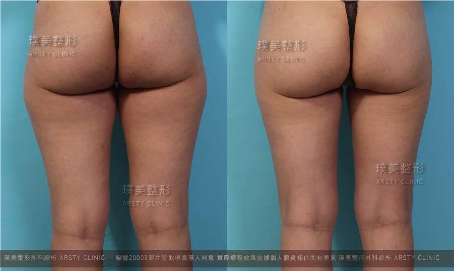 抽脂會痛嗎、抽脂PTT、抽脂後遺症、大腿環抽、腹部環抽、威塑推薦 06