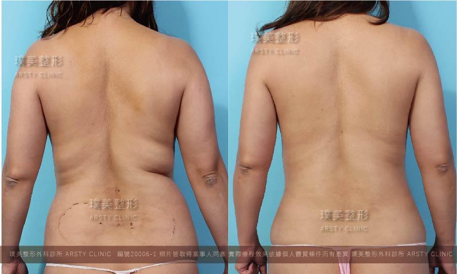 抽脂會痛嗎、抽脂PTT、抽脂後遺症、大腿環抽、腹部環抽、威塑推薦 14