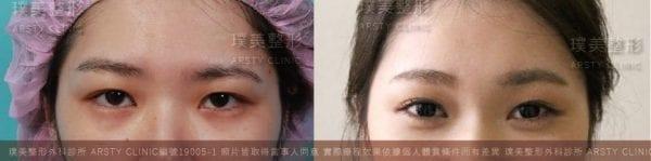 雙眼皮失敗、眉壓眼、提眉失敗、埋線失敗、五爪拉皮台北、提眉風險、提眉後遺症、創提、提眉費用、提眉手術恢復期-19