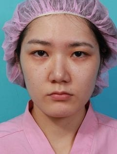 提眉手術術前眉壓眼情形明顯