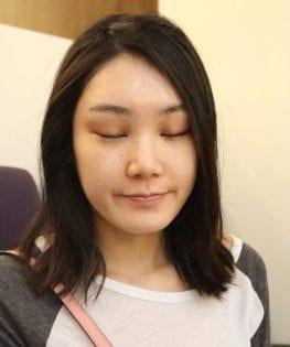 內視鏡提眉術後一週案例