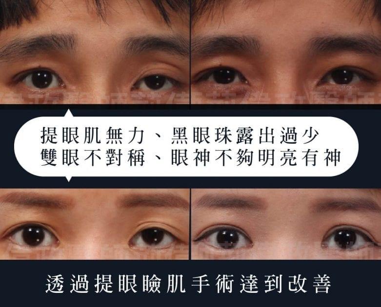 提眼瞼肌、荊偉政醫師、璞美整形、提眼瞼肌恢復期、提眼瞼肌消腫、提眼瞼肌多久後恢復自然、提眼瞼肌價錢、提眼瞼肌失敗、提眼瞼肌風險、提眼瞼肌疤痕、提眼瞼肌後遺症、ptt推薦、台北、推薦、大小眼、提眼肌PTT、眼睛無神、提眼肌術後