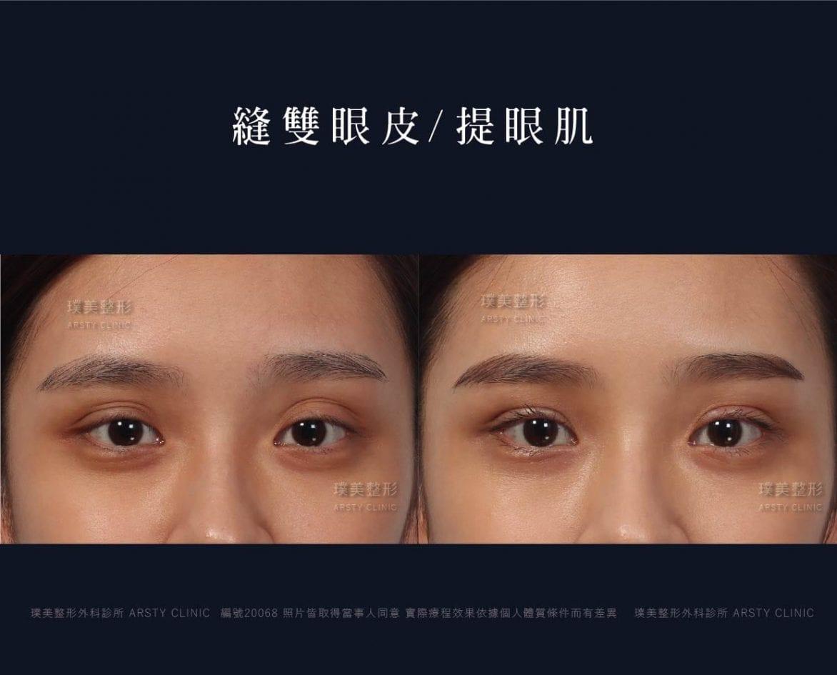 荊偉政醫師、眼整形權威、眼整形推薦、眼整形外科、雙眼皮手術費用、雙眼皮手術推薦、縫雙眼皮、訂書針雙眼皮、雙眼皮PTT、ptt推薦、雙眼皮手術、雙眼皮價錢、雙眼皮失敗、雙眼皮風險、雙眼皮疤痕、台北、推薦