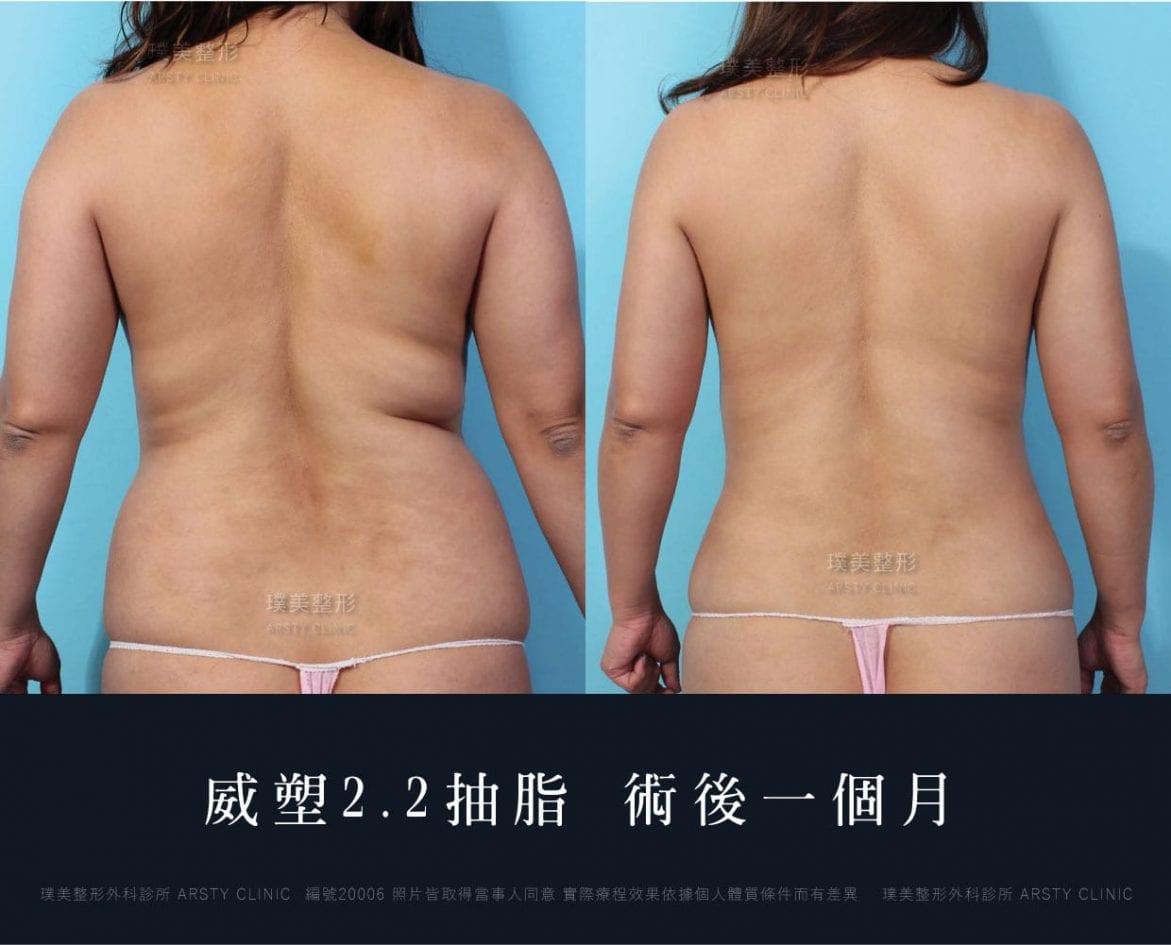 腹部環抽、肚肉、背肉抽脂術後一個月