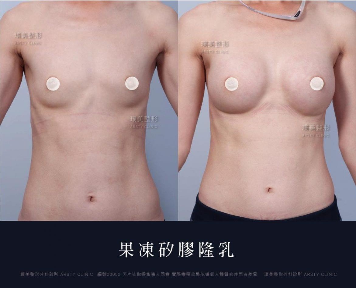 果凍矽膠隆乳手術案例
