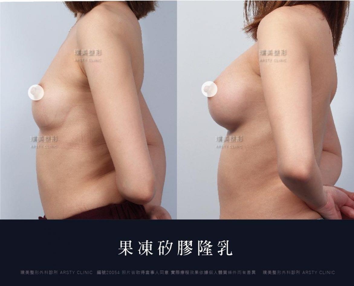 果凍矽膠隆乳手術案例前後對比照