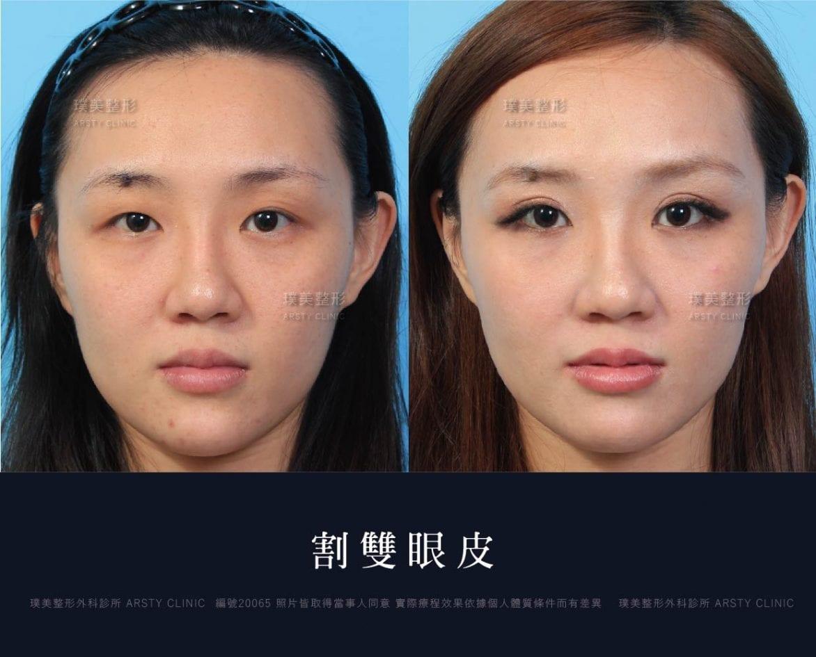 璞美醫美荊偉政醫師割雙眼皮手術